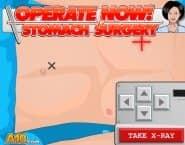 Оперировать Немедленно: Операция на Желудке